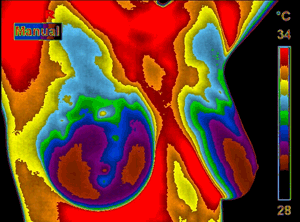 thermography-1