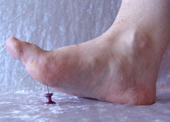 neuropathy of legs